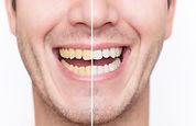 teeth-whitening-deluxe-dental-group