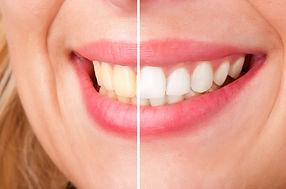 Teeth whitening dentist in Warren