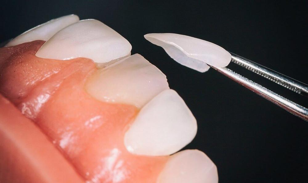 Veneers dentist in Warren