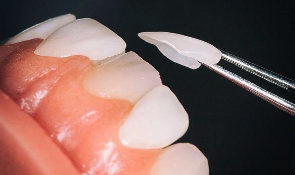dental-veneers-warren-dentist-min.jpg