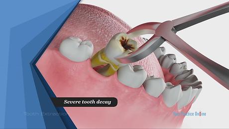 tooth extraction dentist in Warren, NJ