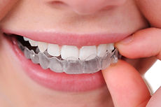 Dentist in Warren, NJ, invisalign, patient smiling dentist, happy patient dentist, clear retainers, teeth,