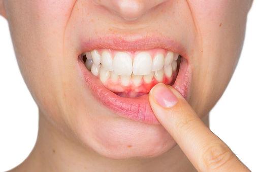 gum disease Warren Dentist