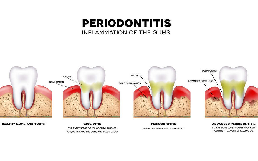 difference-between-gingivitis-and-period
