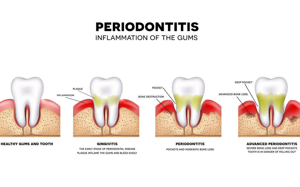 gum disease, periodontal disease, warren dentist, The Star Dental Group