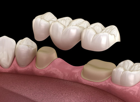 Ask a Dentist: Is a dental bridge a good option for missing teeth?