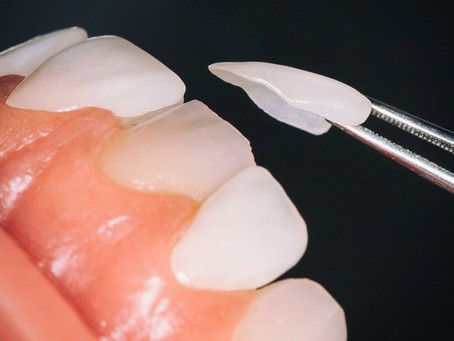 Veneers are all about Creating Beautiful Smiles