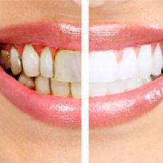 Dentist in Warren, NJ, periodontal disease, gum disease, periodontal therapy, periodontitis,