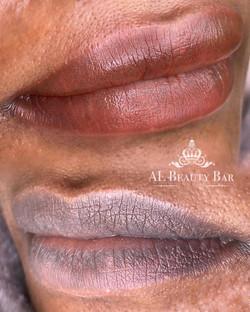 Dark Lip Correction