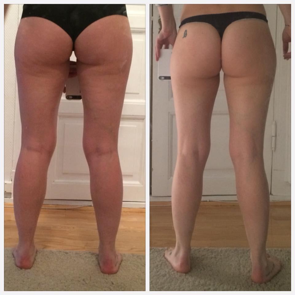 Anti-Cellulitte. 4 treatments