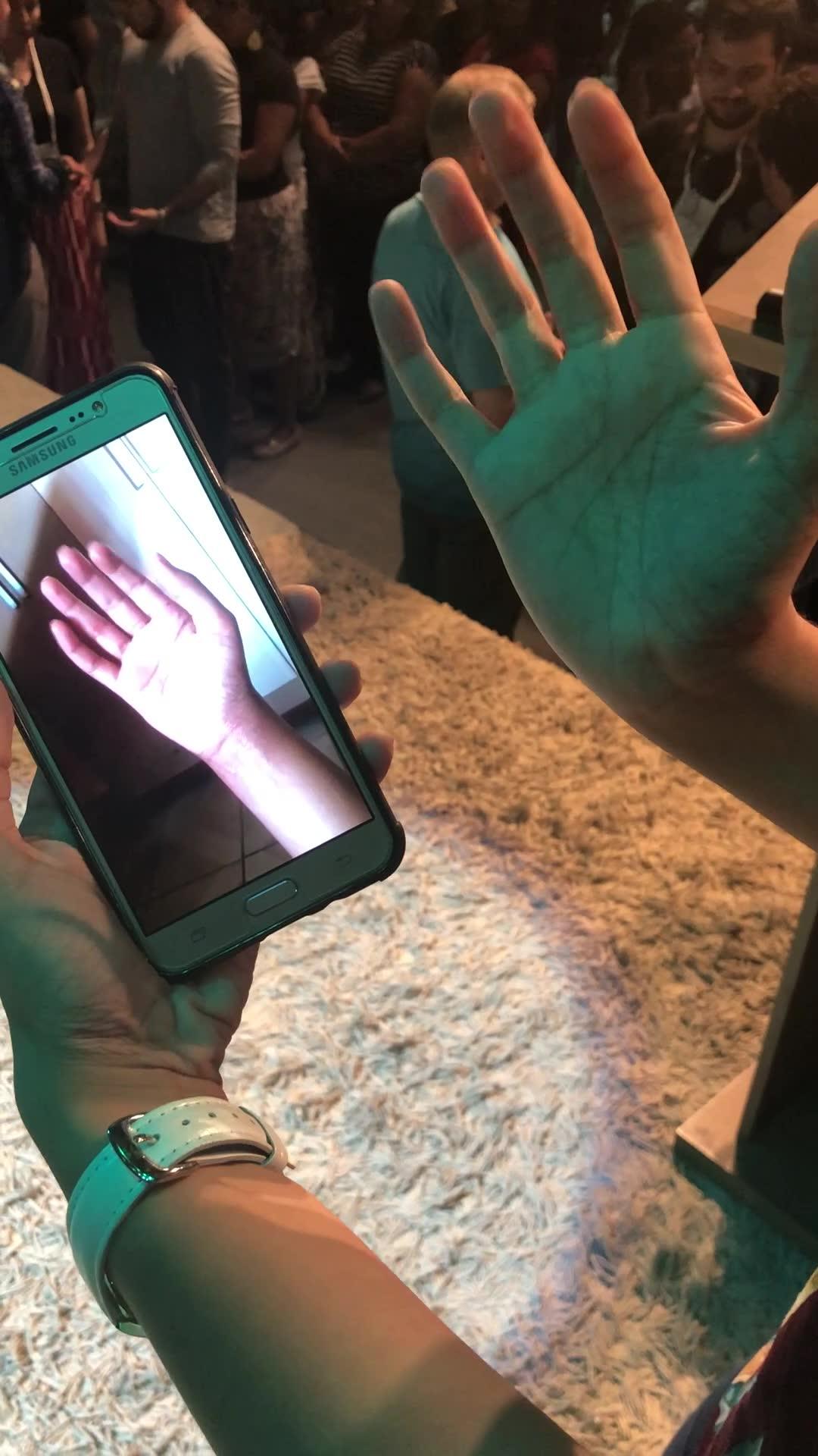 Severley Damaged Little Finger Restored