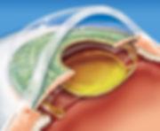 Implante de Lentes Intraoculares _ UPO O
