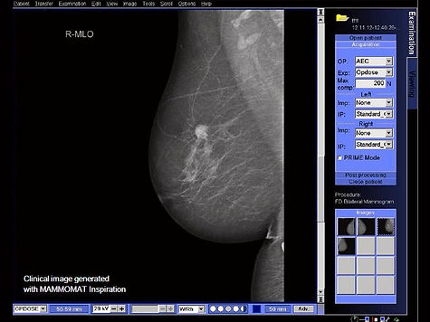 Digital-Mammography-System-Mammomat-Fusion-personalized-opdose_1800000001181245.jpg
