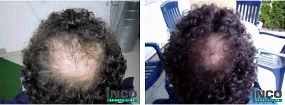 Th Cell Station Ibiza - Hair Treatment