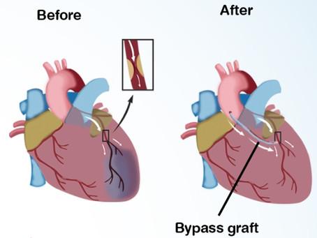 การผ่าตัดบายพาสเส้นเลือดหัวใจ คืออะไร
