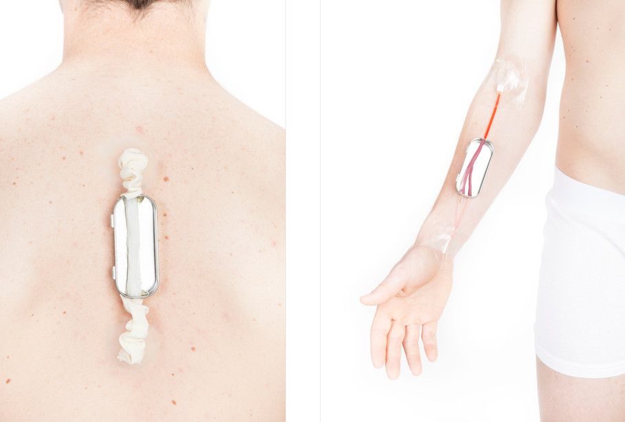 DIY Spinal and Vascular Bypasses