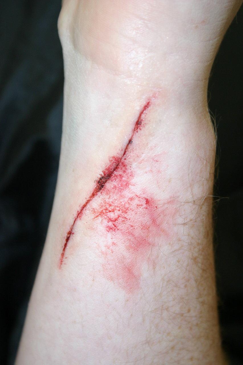 Injury Simulation