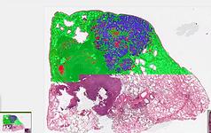 Ai percent tumor & percent necrosis.png