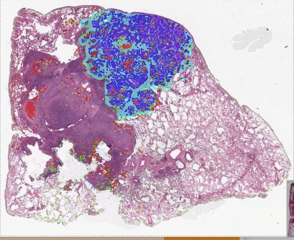 tumor and necrosis ai