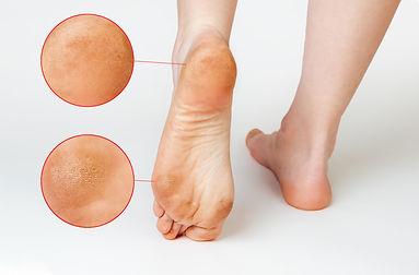 bigstock-Female-Feet-With-Corns-And-Cal-