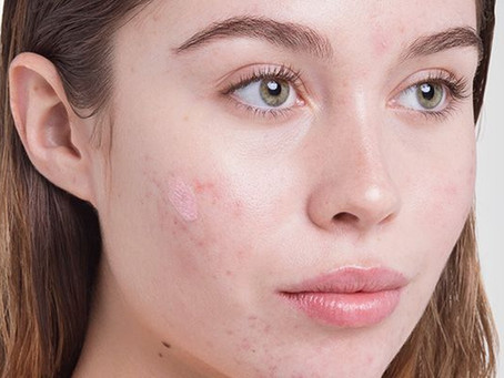 Do I Need a Morning Skin Care Routine?