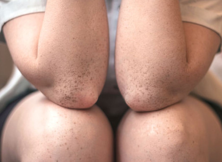 WHAT IS ECZEMA AND WHO GETS IT?