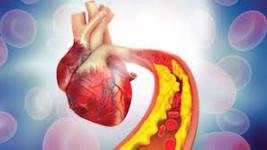 Colesterolul alimentar si bolile cardiovasculare
