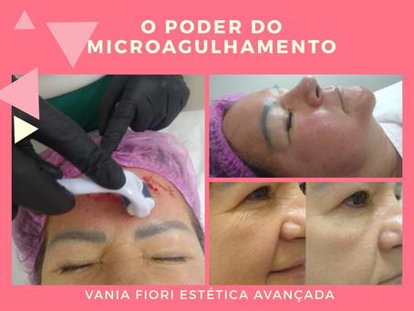 Quer ver o poder do Microagulhamento Facial? Entra aqui!