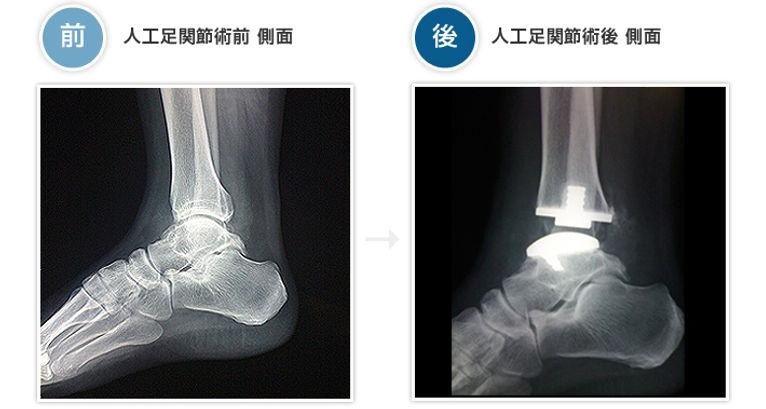 pic_foot02.jpg