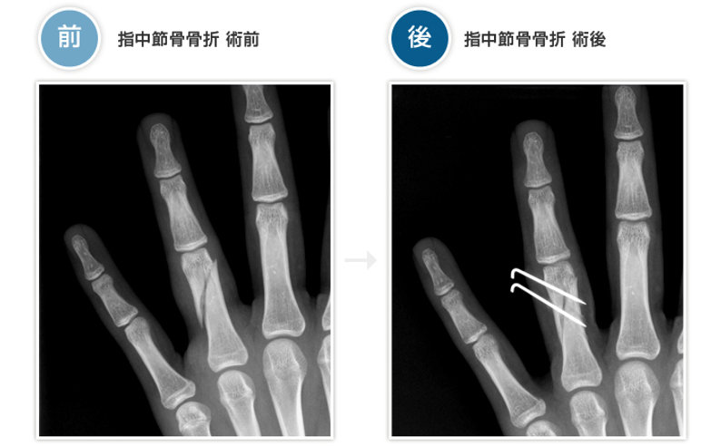 pic_bone10.jpg
