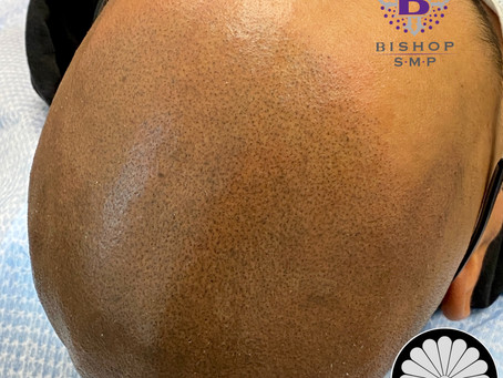 SMP for East Indian with Male Pattern Baldness