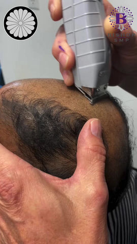 SMP for Male Pattern Baldness | Vancouver Scalp