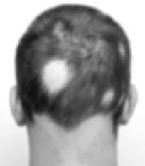 alopecia-areata_edited_edited.png