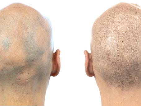 Hide Alopecia with SMP