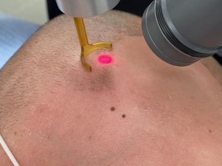 SMP Laser Removal in Vancouver