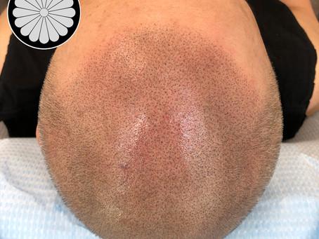 Vancouver Scalp Micropigmentation Clinic