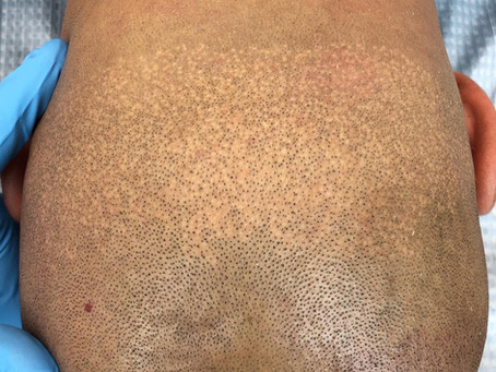 FUE Hair Transplant Scar Concealment with SMP