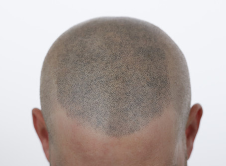 Botched Scalp Micro Pigmentation Removal