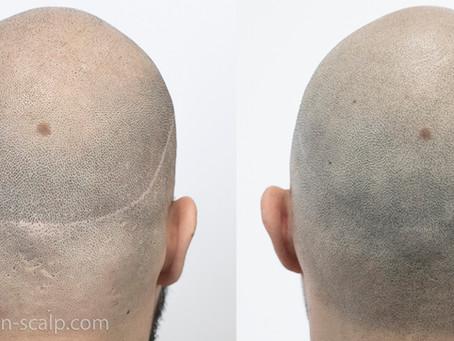 Hair Transplant FUT Scar Camouflage