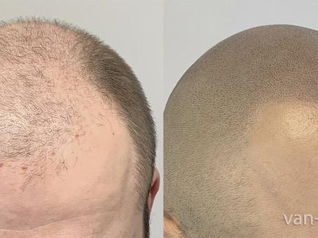 Hair Transplant Alternative for Bald Men