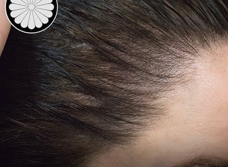 SMP Vancouver: Female Thinning Hair