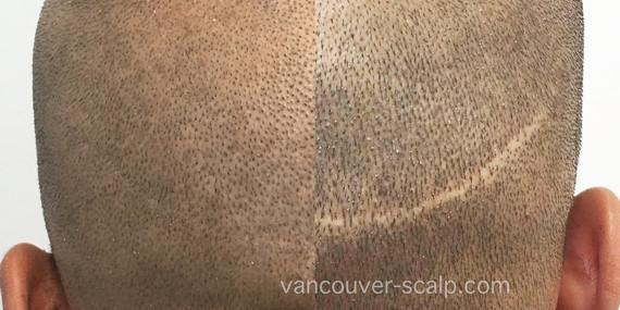 FUT Hair Transplant Scar