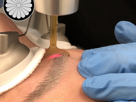 Microblading and Eyebrow Laser Tattoo Removal