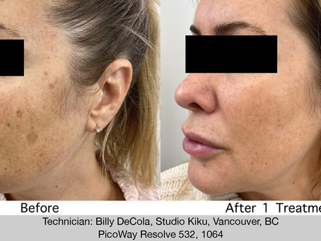 Sun Spot Pigmentation Treatment