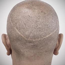 fut-hair-transplant-scar_edited.jpg
