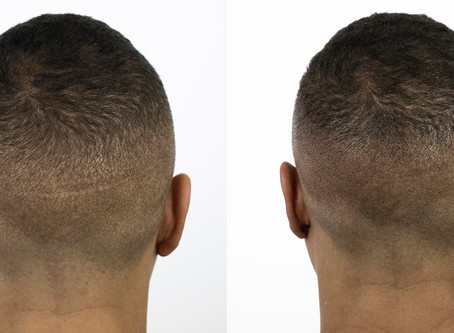 Hair Transplant Concealment with SMP