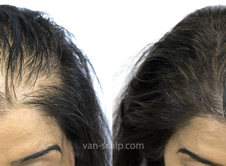 SMP for Female Thinning Hairline