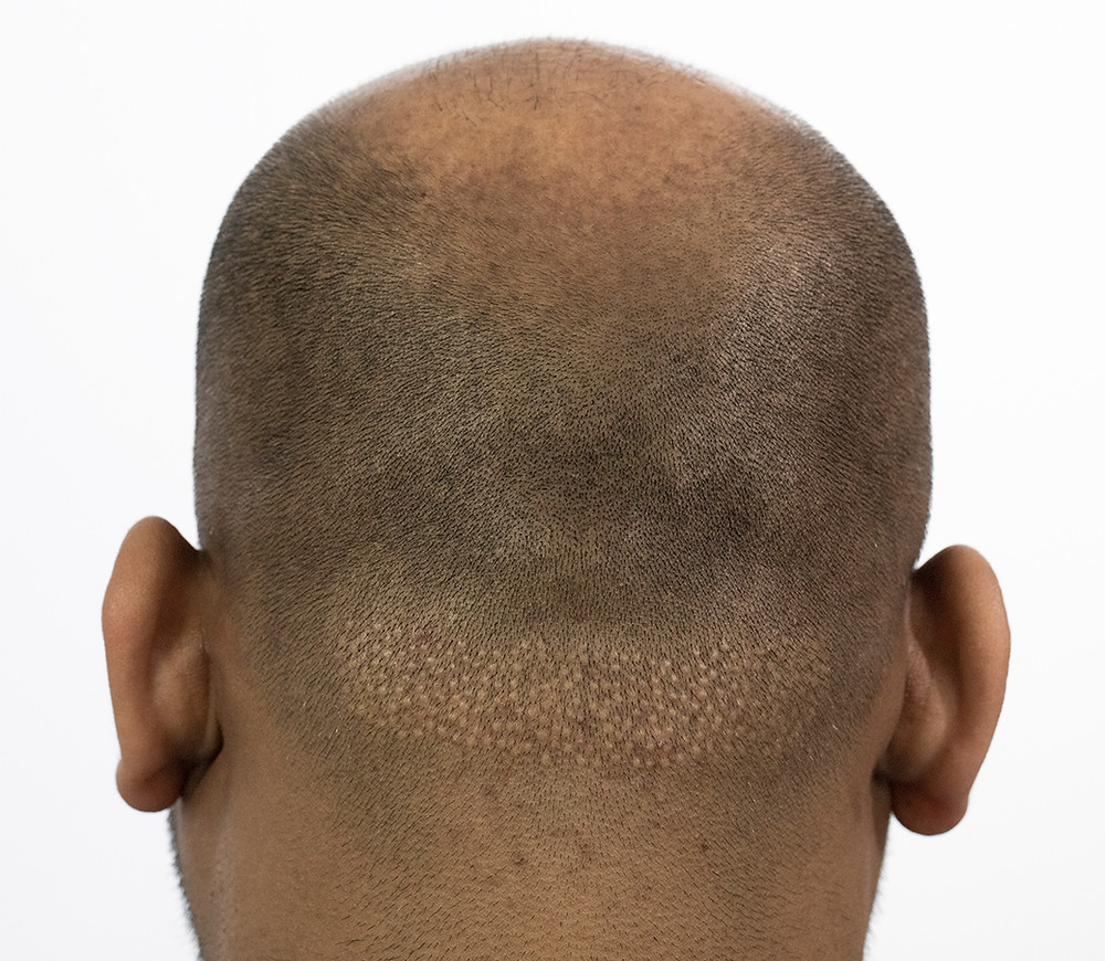FUE Hair Transplant Scar (before SMP)