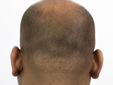 Vancouver Hair Transplant FUE Scar