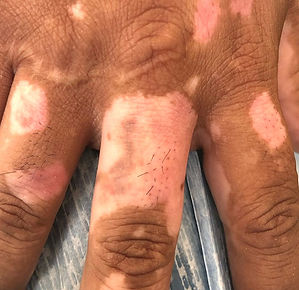 vitiligo_edited.jpg
